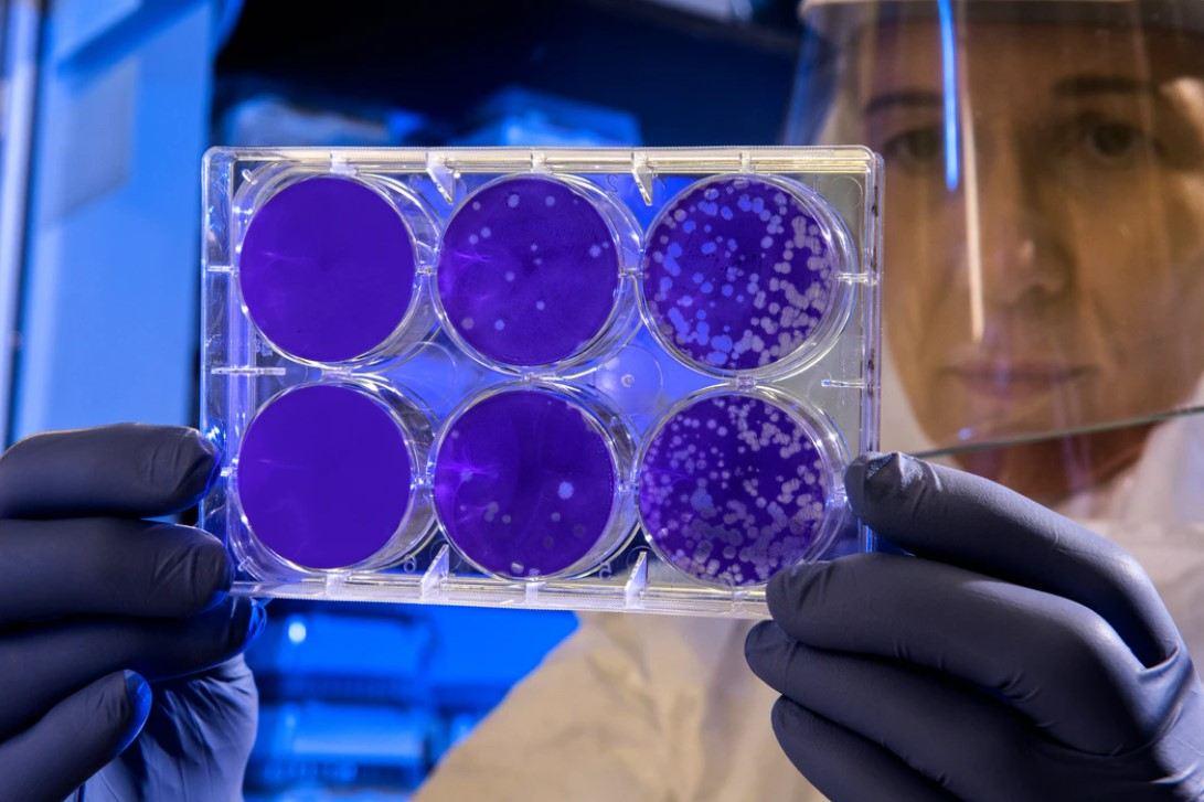 Gambar Thumbnail Perbedaan Archabacteria dan Eurobacteria