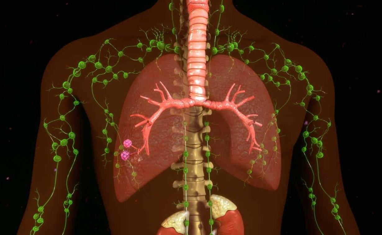 Gambar Thumbnail Sistem Limfatik