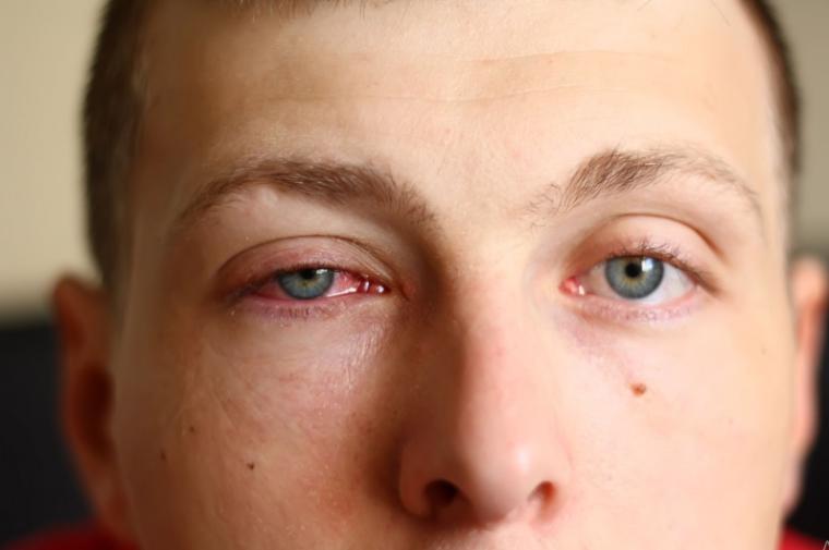 Gangguan pada Sistem Indera Mata